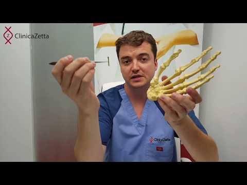 tratament articular la gunoi de grajd dureri articulare de balet