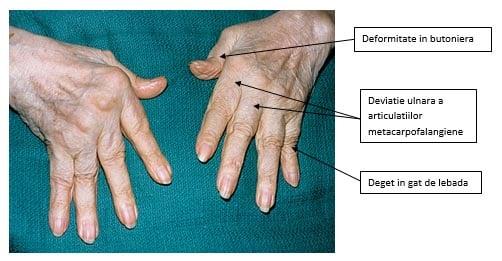 cum să tratăm corect gonartroza articulației genunchiului preparate venoase pentru osteochondroza gâtului