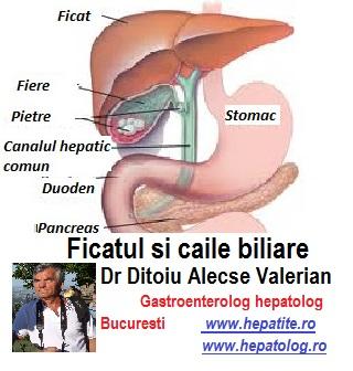 bila biliară pentru bolile articulare