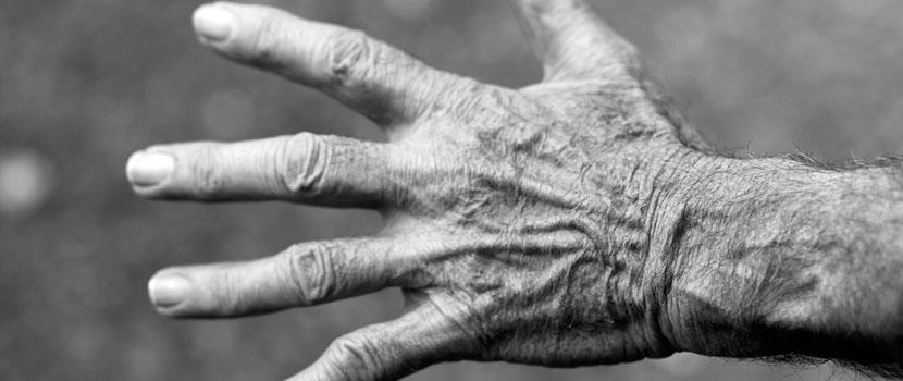 unde artrita reumatoidă este mai bine tratată