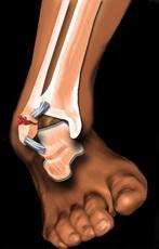 se îmbolnăvește de boala articulară dislocarea articulară produce daune