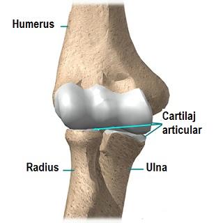 Artralgie la cot Punct dureri pe articulația cotului