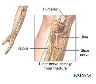 nervul articulației cotului doare unguent pentru tratamentul artritei articulației cotului
