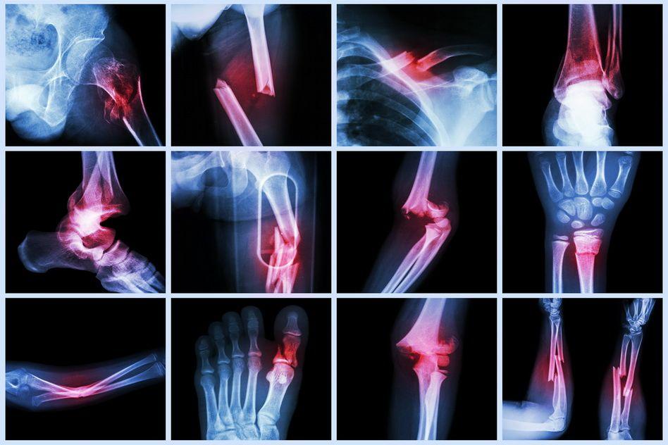 Fractura de sold: Factori de risc, simptome, tratament   Centrokinetic