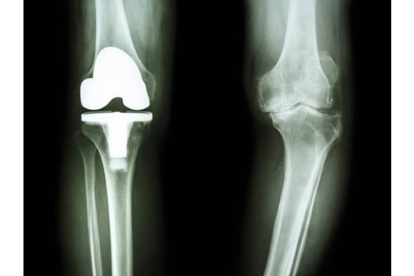 teraflex în tratamentul artrozei genunchiului