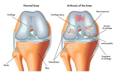 semne radiologice de artroză a articulațiilor interfalangiene distale