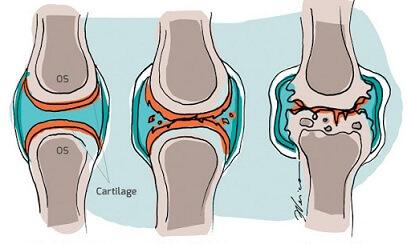 articulația dureroasă și umflată a degetului arătător tratamentul anesteziei articulației gleznei