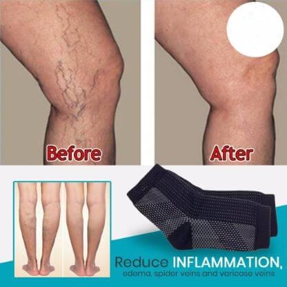 Cum poti trata osteoartrita, Tratamentul genunchiului de cupru