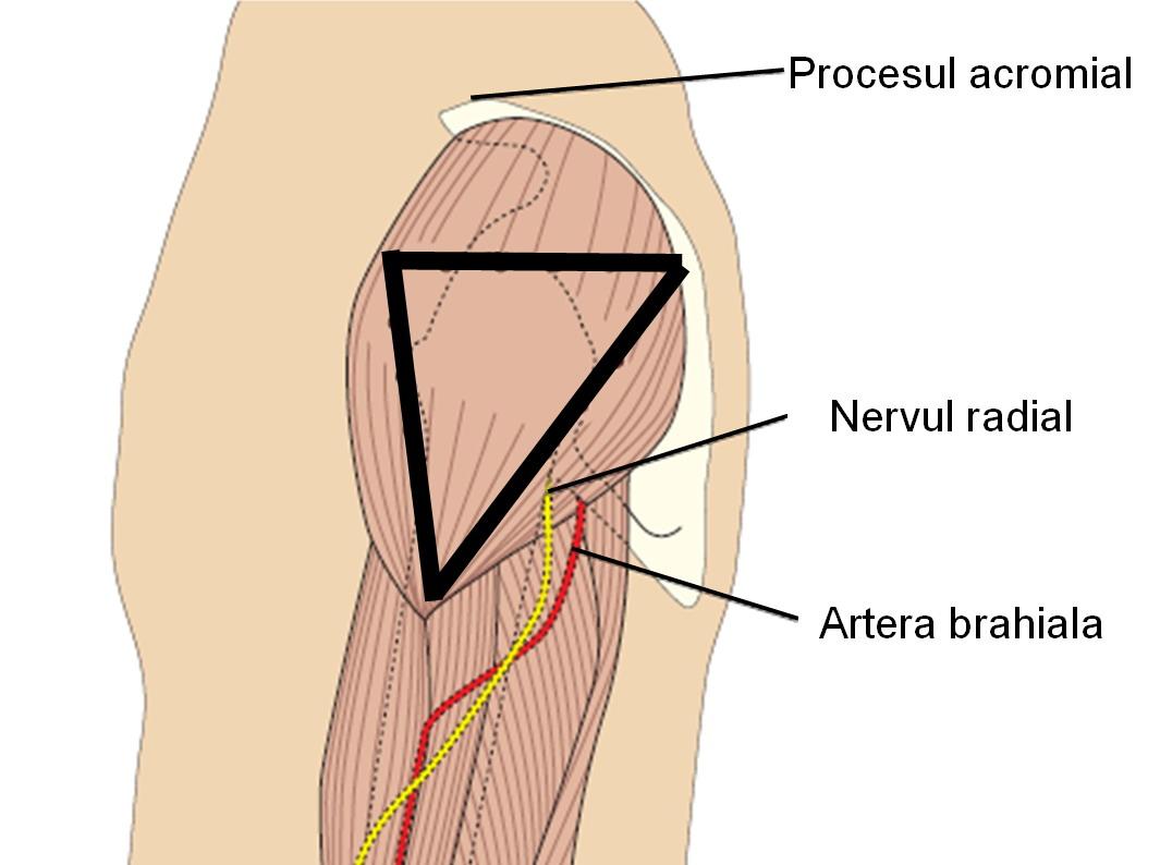 Injectie intramuscular