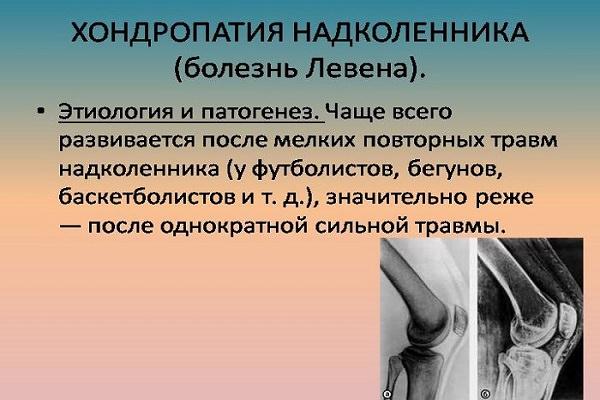Tratamentul articulației genunchiului luxație obișnuită. Entorsa de Gleznă