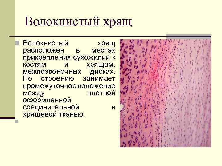 orteze pentru tratamentul artrozei ortoped tratează coxartroza articulației șoldului