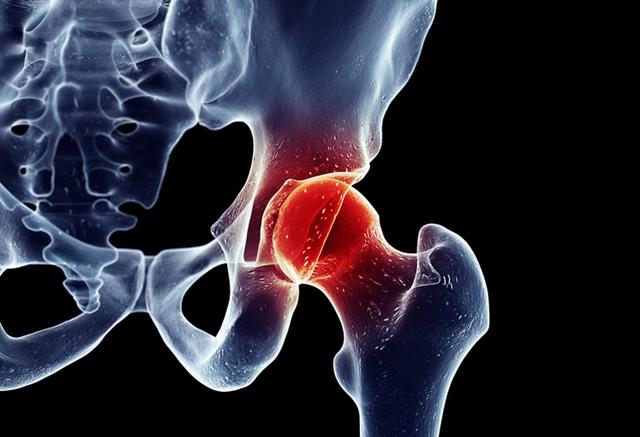 doare articulațiile șoldului și genunchiului