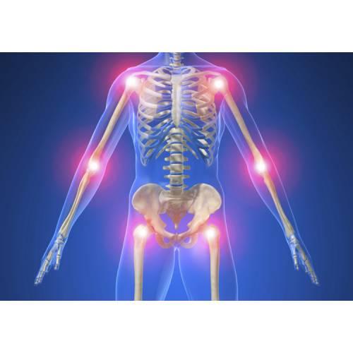 artroza ameliorează umflarea articulațiilor recenzii pentru tratamentul artrozei genunchiului
