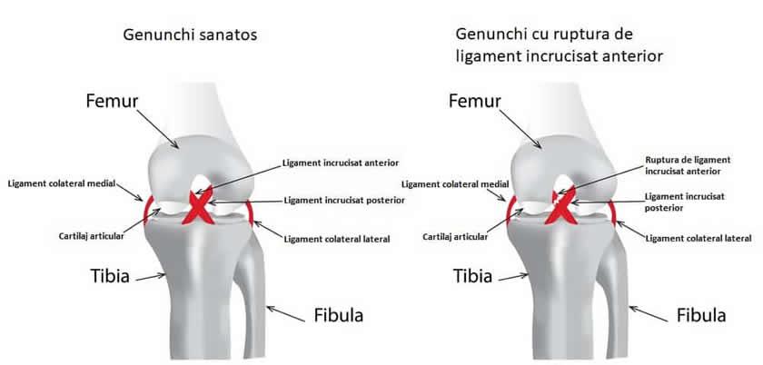 după deteriorarea ligamentelor genunchiului