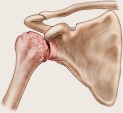 Artroza gradului 0-1 al articulației umărului. Artroza ar putea fi vindecata? - Doctor MIT