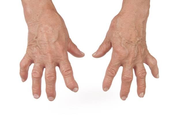 tratamentul articulației umflate a degetelor