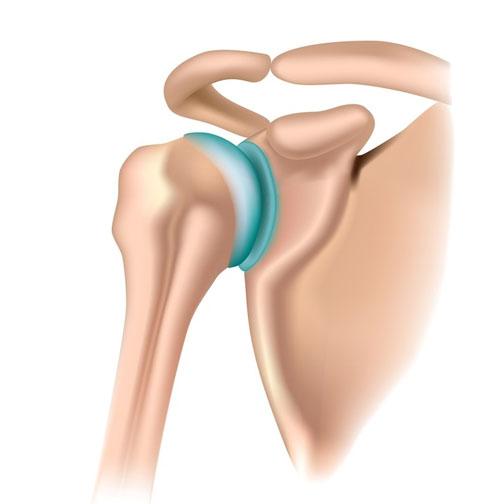 tratamentul articulațiilor laringiene