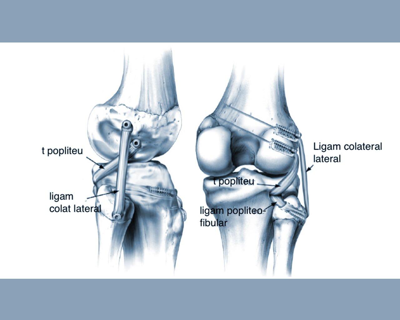 simptomele inflamației articulației umărului dacă există displazie de durere a articulației șoldului