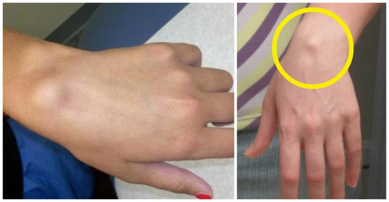 tratamentul fisurilor la încheietura mâinii