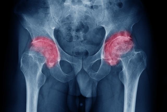 Coxartroza - diagnostic, tratament chirurgical & idicatii postoperatorii