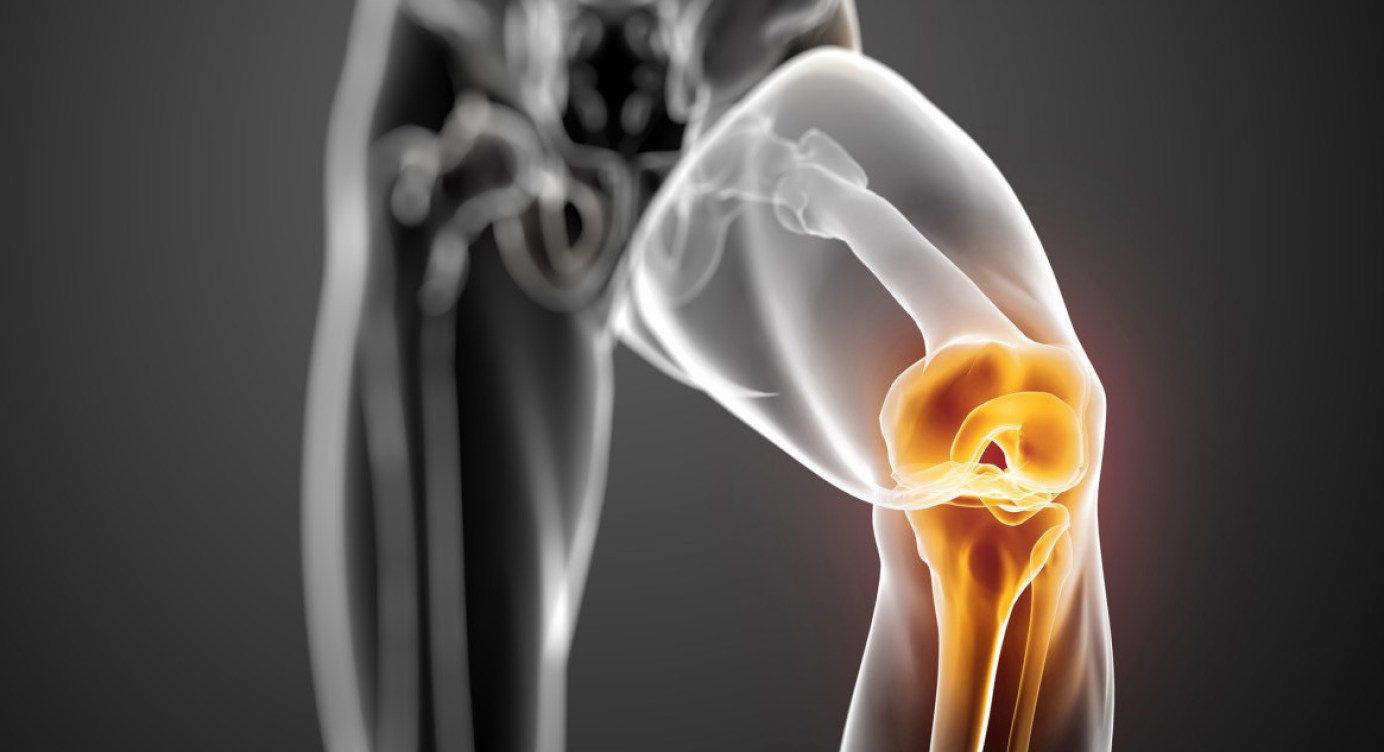 Menisc leziunea mecanismului de formare a genunchiului. Meniscul articulației genunchiului