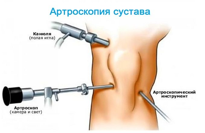 Dureri articulare în articulațiile întregului corp Artralgie vs artrită: care este diferența?