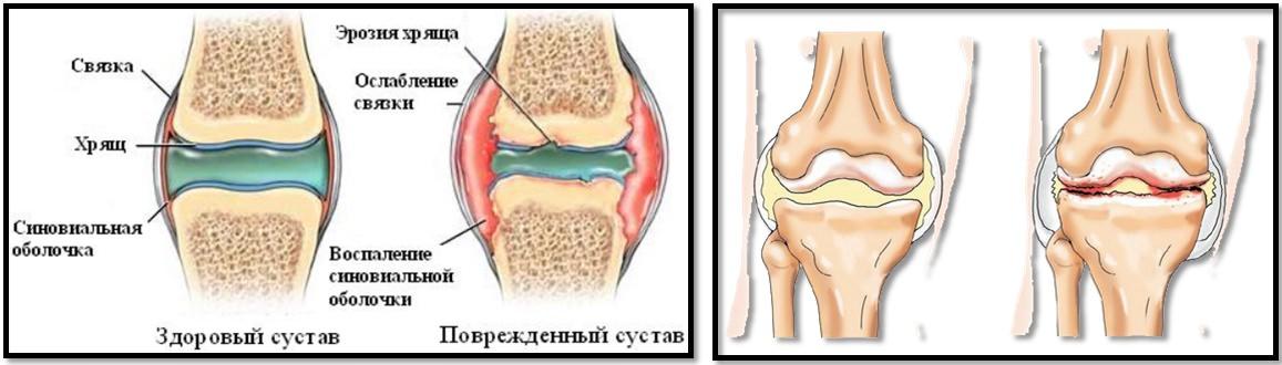 Tratamentul artrozei cu simulatoare Cum se tratează restaurarea articulațiilor poliartritei