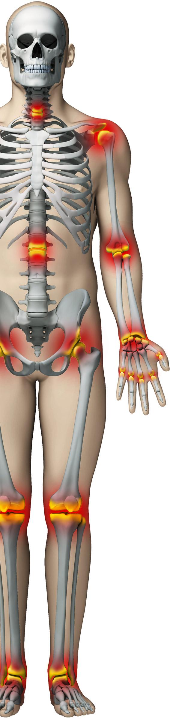 cum să tratezi genunchii cu artrita