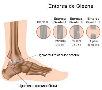 Instabilitatea gleznei- management terapeutic conservator, chirurgical