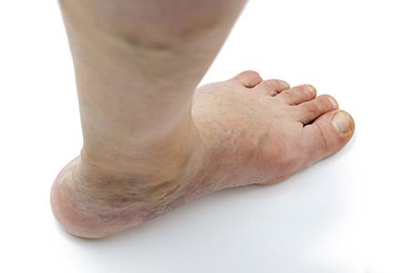 picior umflat cauze