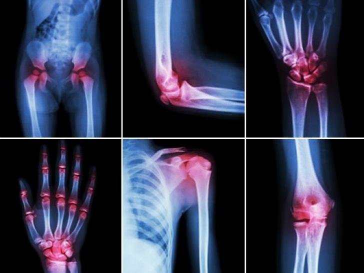 bila în tratamentul articulațiilor