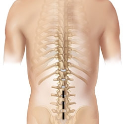 boli de cartilaj ale articulațiilor cum se tratează articulațiile extremităților inferioare