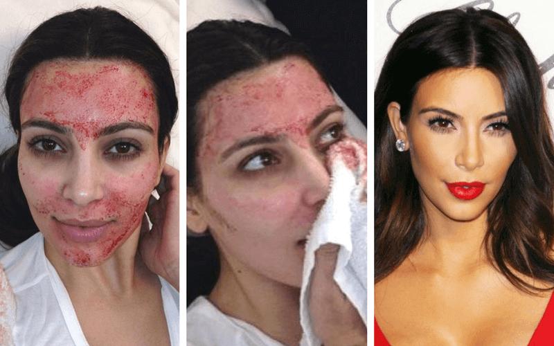 inflamație facială decât pentru a trata boli difuze ale țesutului conjunctiv ce este