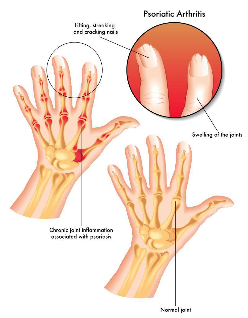Primele semne de artrită cum să tratezi