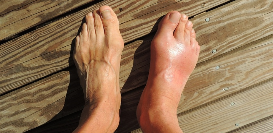 Artrita gutoasa: cum o tineti sub control - Farmacia Ta - Farmacia Ta