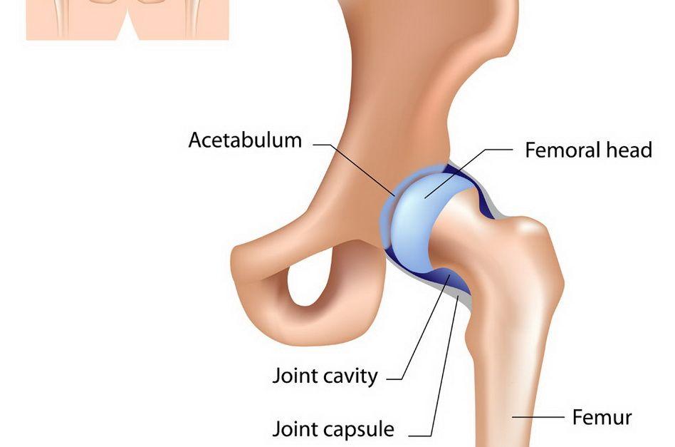 Coxartroza: cauze, simptome, tratament - Artroza displazică a cartilajului șoldului