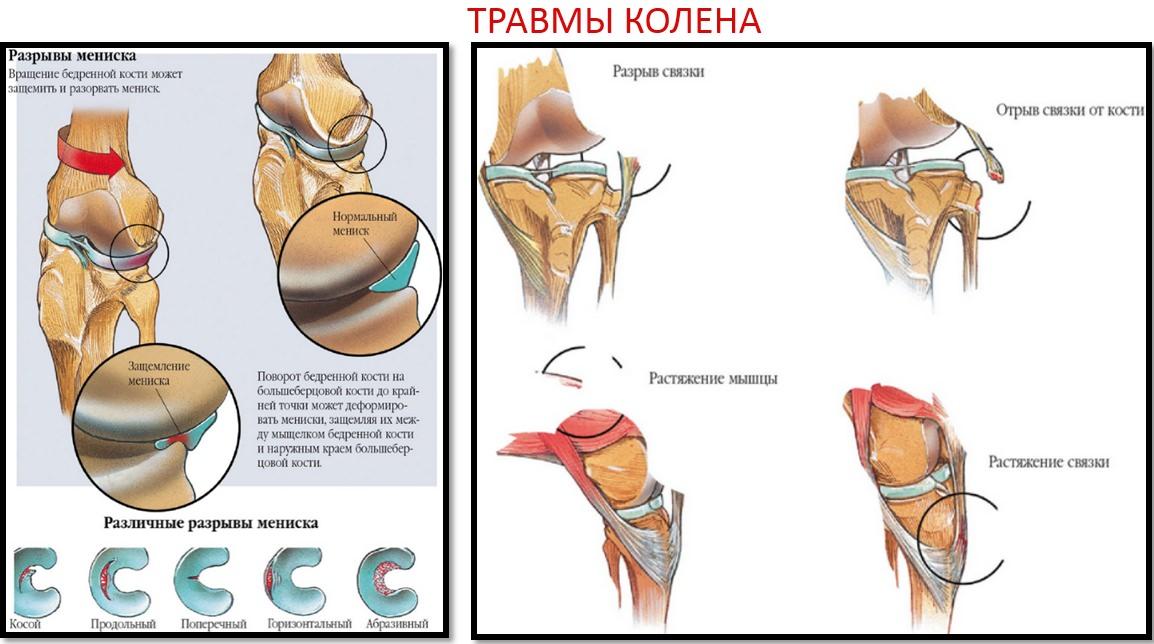 urmăriți cum să tratați articulațiile provoacă dureri la nivelul articulațiilor șoldului