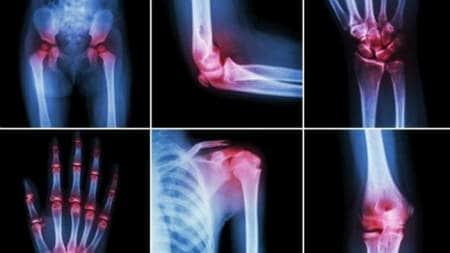 o dietă alimentară crudă tratează artrita