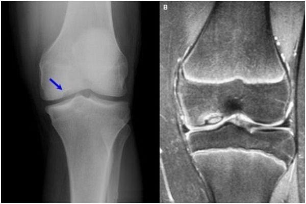 exercițiul articulației genunchiului