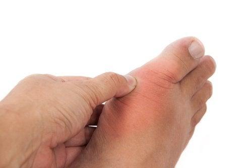 Totul despre guta (artrita gutoasa): Simptome, Factori de risc & Tratament   ipa-law.ro
