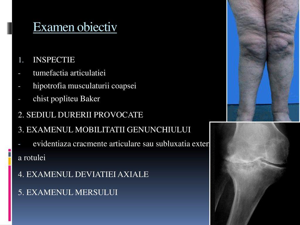 boli congenitale ale genunchiului