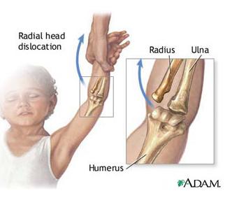 limitarea flexiunii articulației cotului cu durere