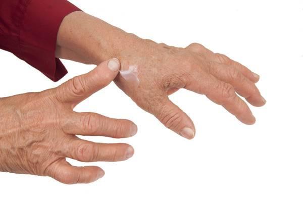 artrita unguentului degetelor