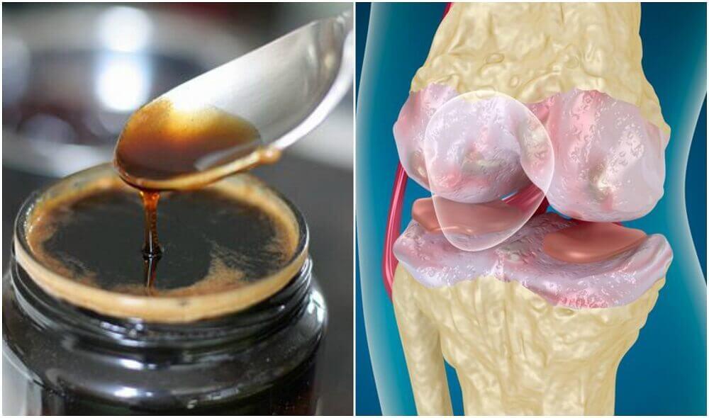 tratamentul artrozei cu bănci de vid dureri severe la nivelul articulației șoldului și brațelor