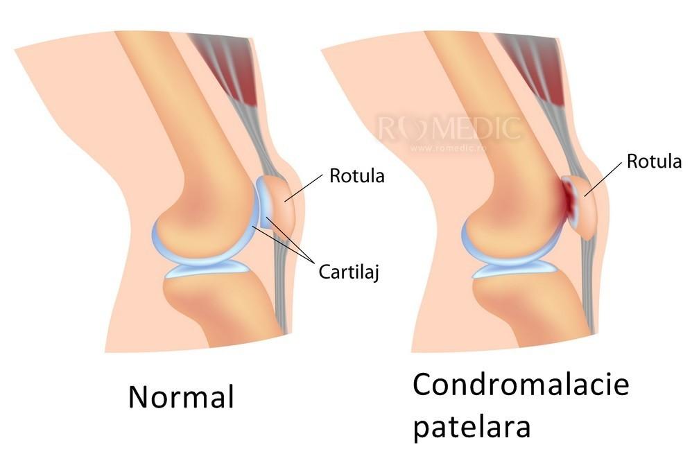 artrita articulației genunchiului stâng este