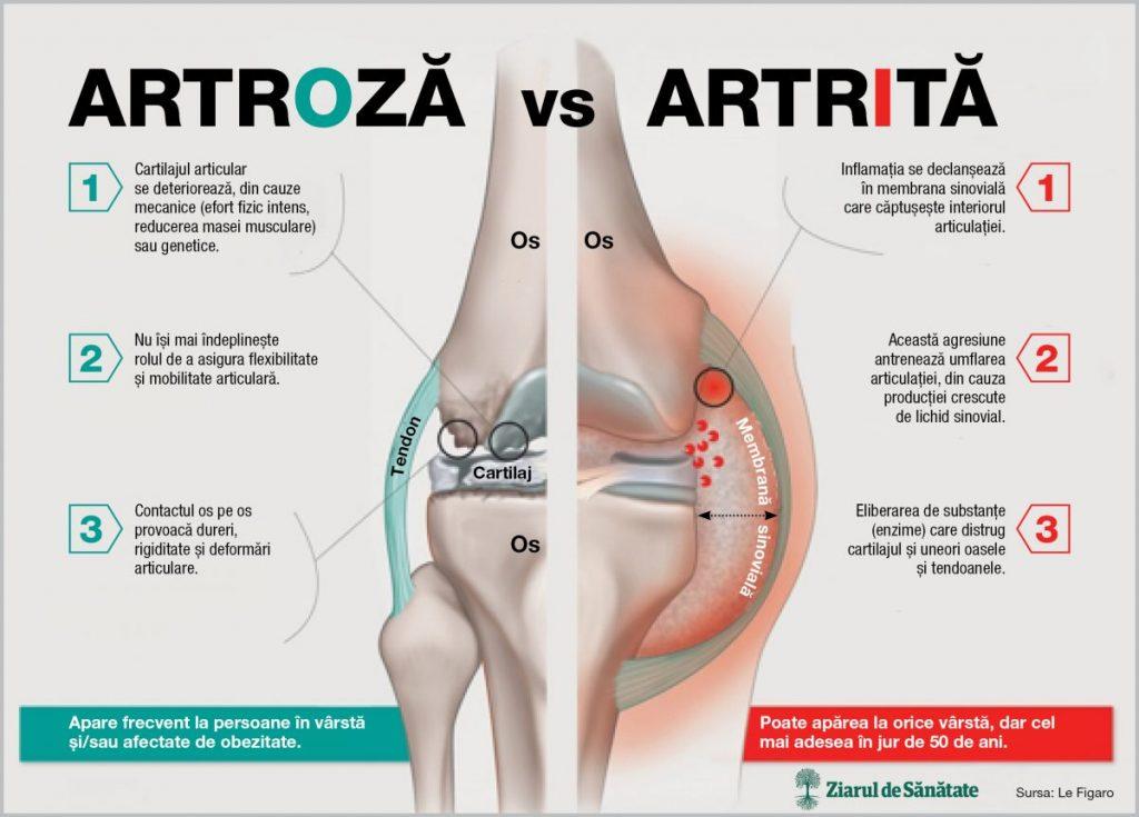 artroza coloanei vertebrale se numeste