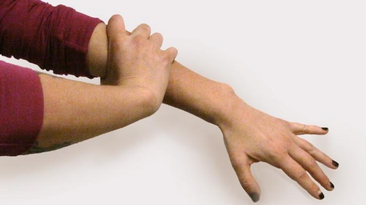 articulația încheieturii doare pe mâna stângă tratament pentru inflamația genunchiului