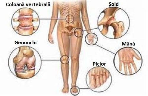 deplasarea articulației pe picior cum se tratează