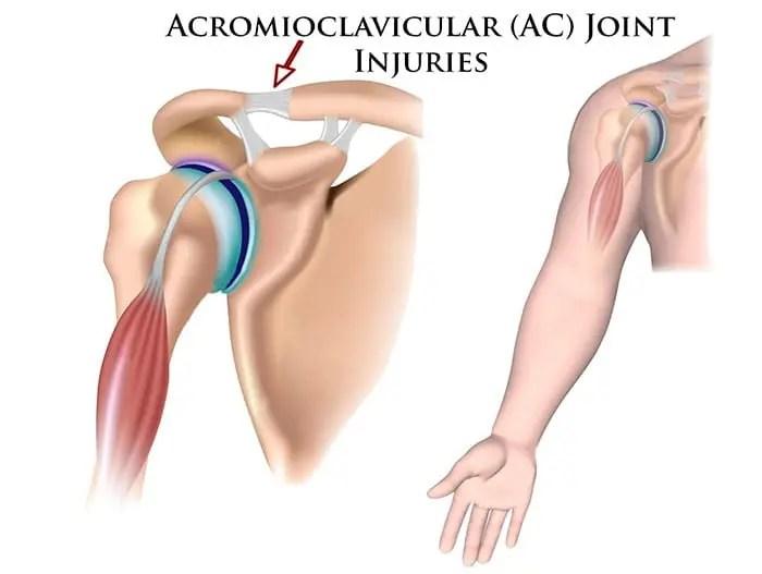 Glicozamină și condroitină recenzii preț 2-3 artroze ale tratamentului articulației șoldului