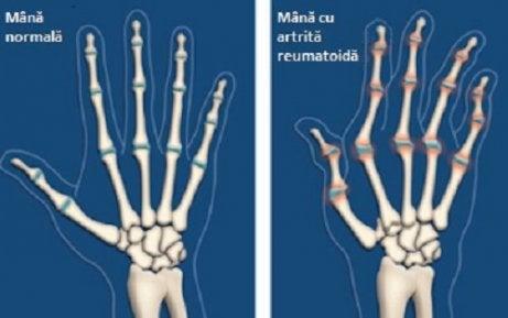 artrita articulațiilor și tratamentul acesteia